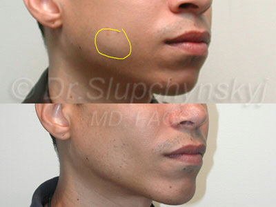 Buccal Fat Removal, NYC & New Jersey - For a Chiseled Look
