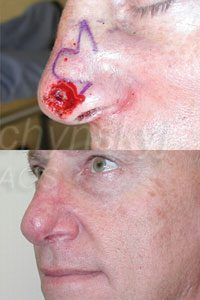 Nose Reconstruction Case 1 The Aesthetic Institute Of