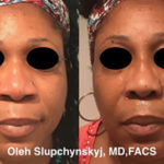 Ethnic-African-American Non-Surgical Rhinoplasty
